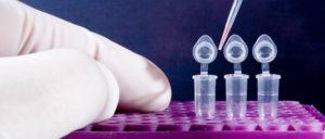 histone extraction protocol