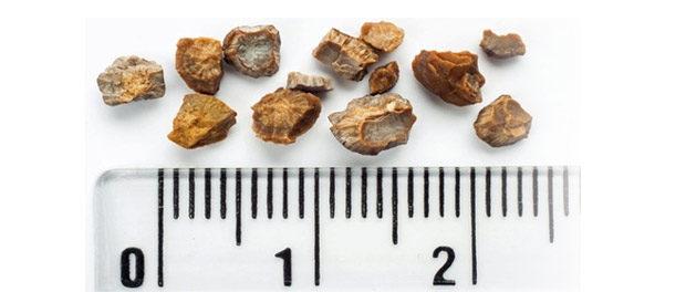 Cysteine Stones Kidney Cystine Kidney Stones