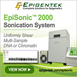 EpiSonic 2000 Sonication System
