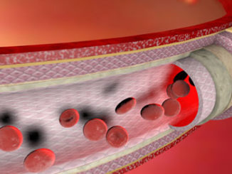 Histone Demethylation Plays a Role in Turning Stem Cells into Blood Vessel Cells