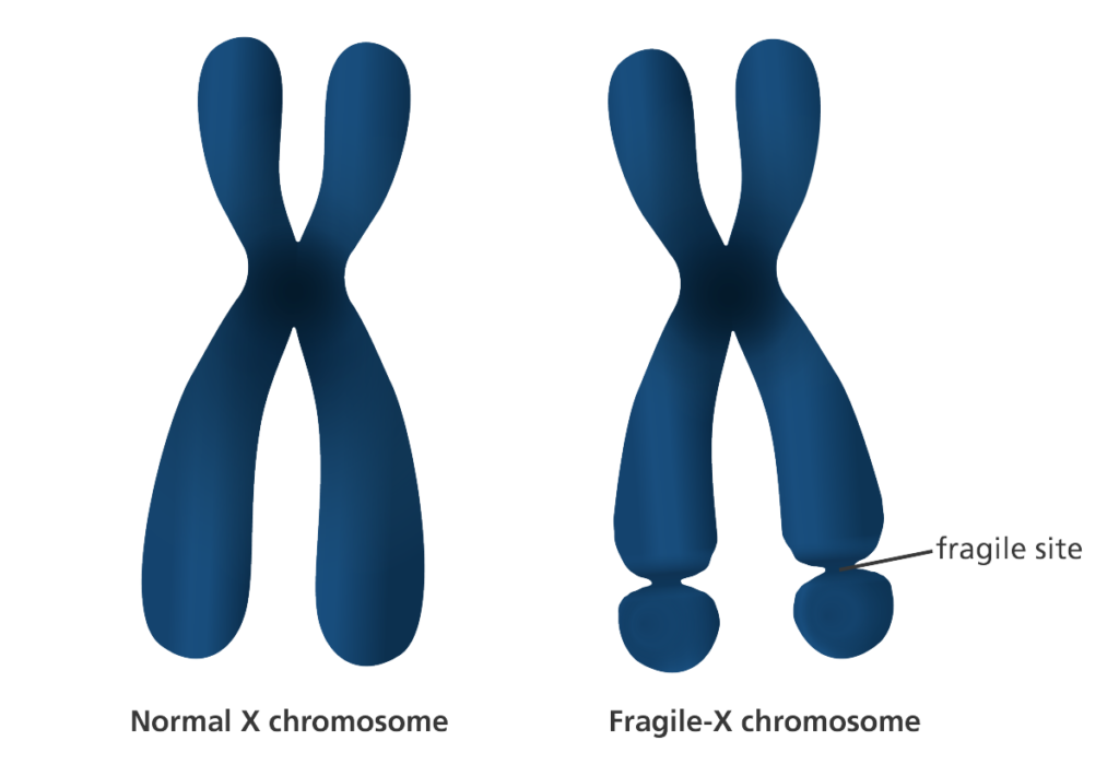 fragile x chromosome and normal chromosome