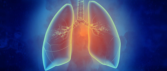 Lungs Epigenetics